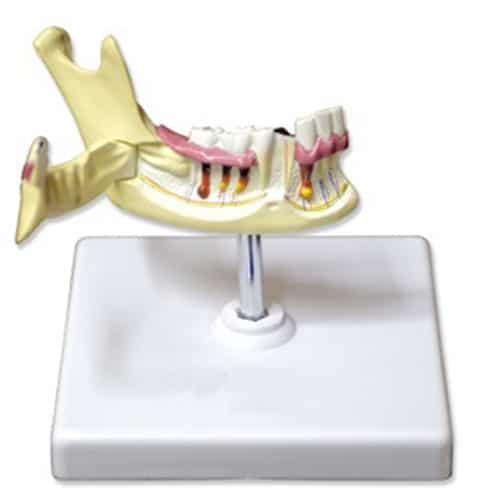модел на долна челюст